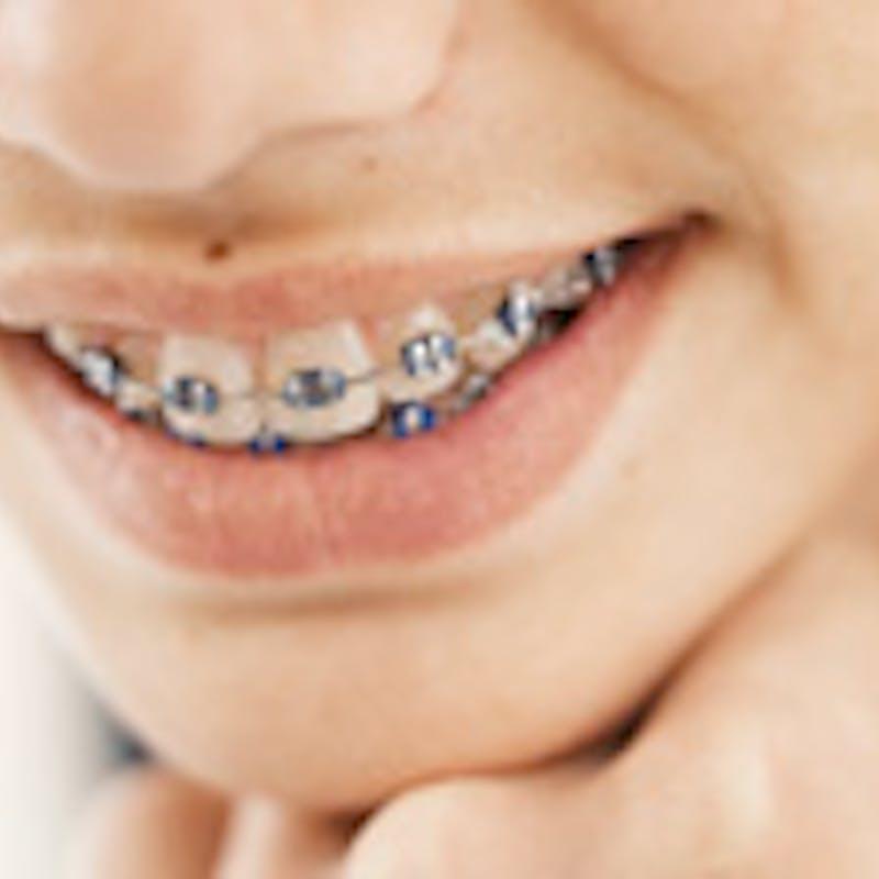 Soins dentaires : quel remboursement ?