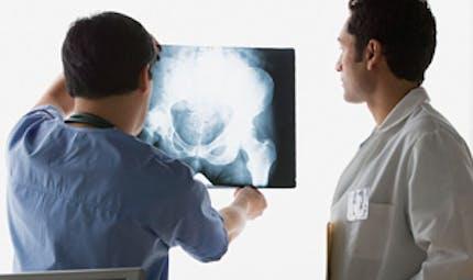 Des fractures de mieux en mieux soignées