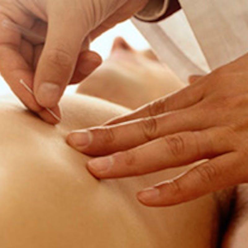 Acupuncture, homéopathie, ostéopathie et hypnose à l'hôpital